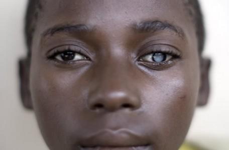201105-Burundi 12